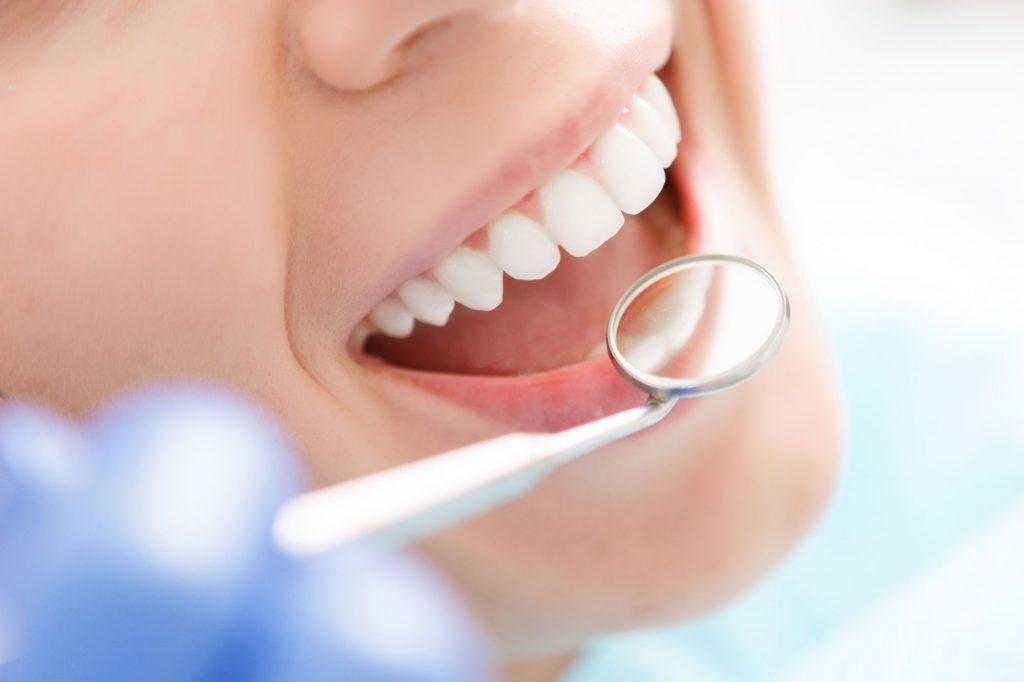 AdobeStock 85924650 1024x682 - Teeth Whitening